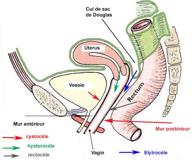 Cystocèle, hystéroptôse, rectocèle et elytrocèle