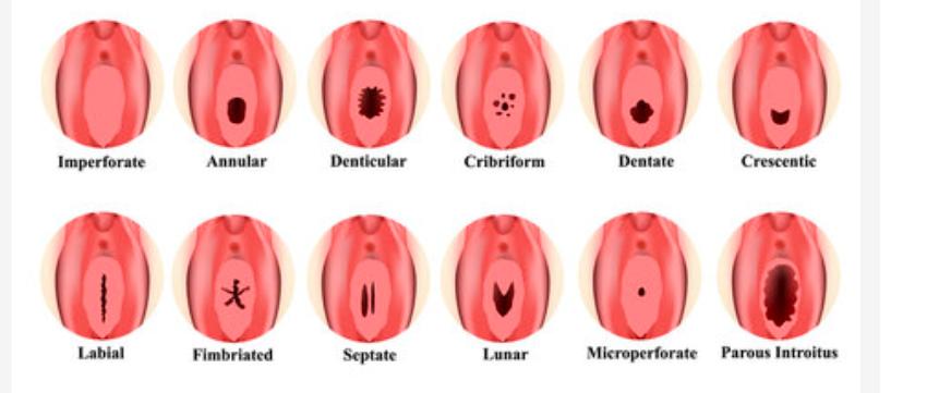 Vaginisme et douleurs vaginales chez la jeune femme : l'hymen