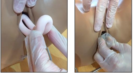 Le pessaire gynécologique : présentation et utilisation