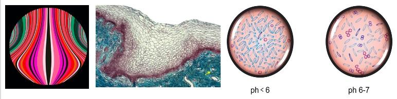 uleurs et gênes vaginales de la femme adulte et/ou ménopausée